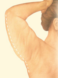 Dr. Vallecillos - Posterior Arm Lift (Before)