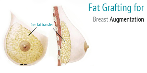Dr. Vallecillos - Fat Transfer Breast Augmentation