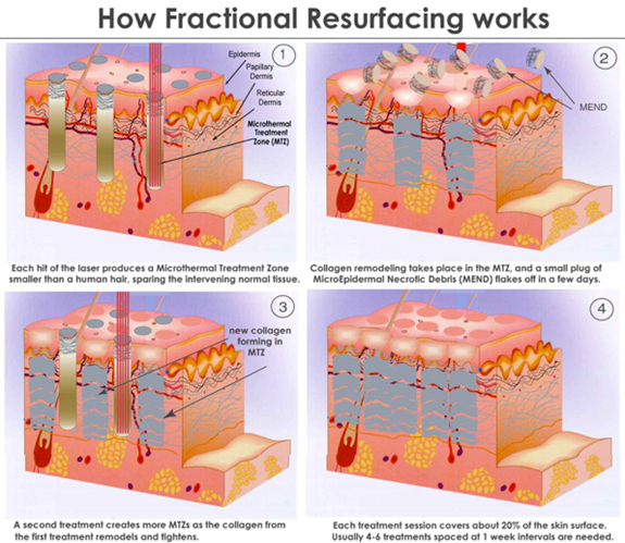 Dr. Vallecillos - Fractionated Laser How It Works