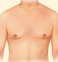 Dr. Vallecillos - Liposuction for Gynecomastia Surgery