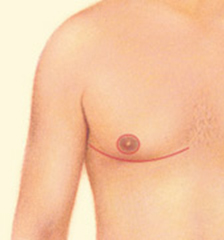 Dr. Vallecillos - Excision for Gynecomastia Surgery