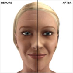 Dr. Vallecillos - Laser Resurfacing (Before & After)
