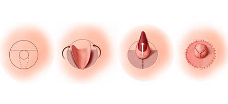 Dr. Vallecillos - Nipple Reconstruction Skate Flap