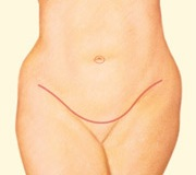 Dr. Vallecillos - Tummy Tuck (Abdominoplasty)