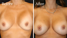 Dr. Vallecillos - Breast Revision (Before & After)