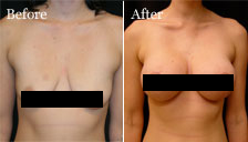 Dr. Vallecillos - Breast Augmentation, Breast Revision (Before & After)