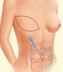 Dr. Vallecillos - Breast Reconstruction (A TRAM Flap)