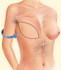 Dr. Vallecillos - Breast Reconstruction (Latissimus Dorsi Flap)