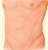 Dr. Vallecillos - Liposuction (After)