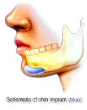 Dr. Vallecillos - Chin Implant