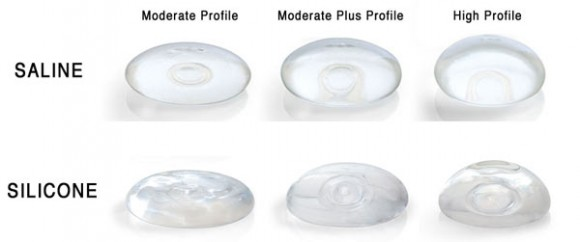 silicone-vs-saline-breast-implantGVMD
